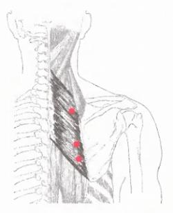 térdcsigolya rostok kezelésében fájdalom a csípő és a medence ízületében
